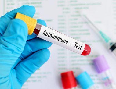 Autoimmune Diseases And Diet