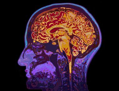 The Effects of Exercise on Your Brain