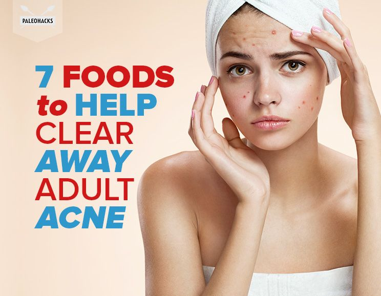 how to keep skin clear of acne