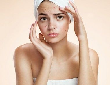 7 Foods to Help Clear Away Adult Acne
