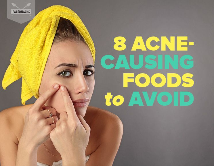 8 foods that cause acne to avoid
