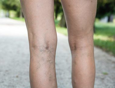 Varicose Veins: Causes, Natural Remedies and Prevention