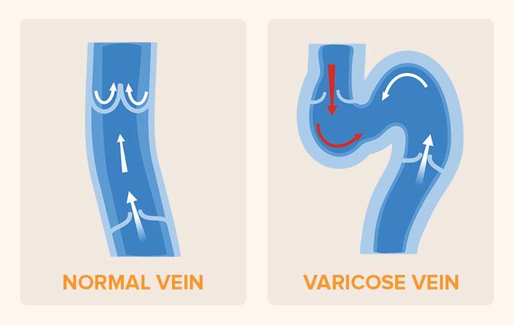 Varicose-Veins-Infographic1.jpg