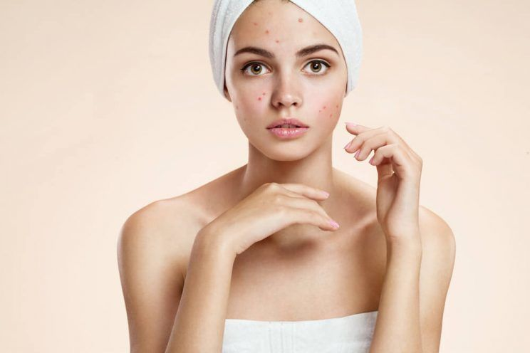 Scowling-girl-in-shock-of-her-acne-with-a-towel-on-her-head-e1464825620849.jpg