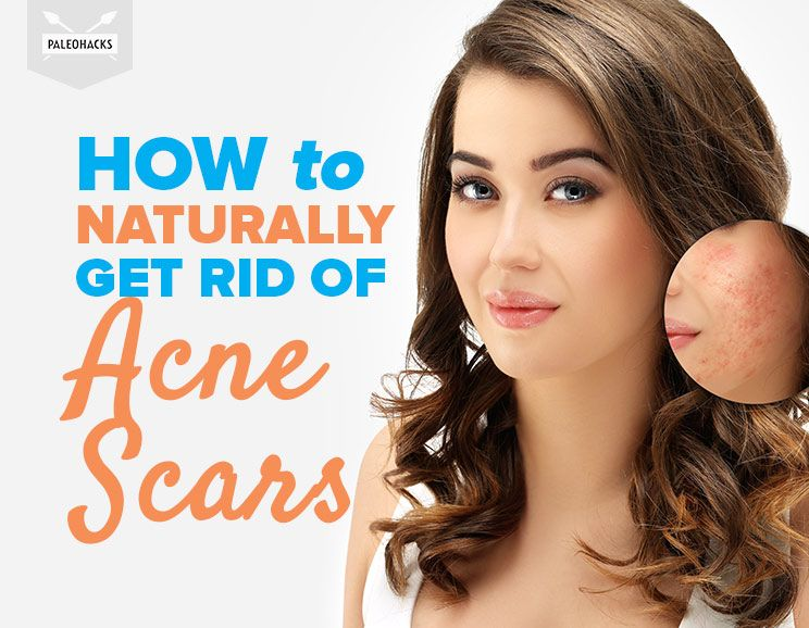 what is good to get rid of spots