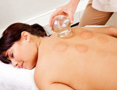 Cupping Therapy: What It Is, Uses & Benefits