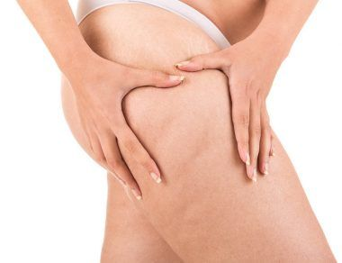 Let's Talk About The C-Word: 8 Realistic Ways to Reduce Cellulite