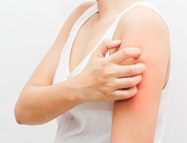 Eczema: What Is It, Causes & Natural Treatment