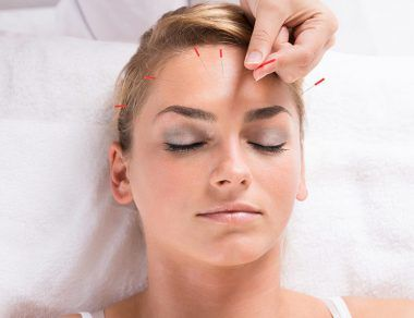 Ways Acupuncture Can Boost Your Health, From Head to Toe