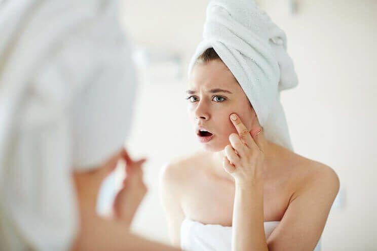 acne-digestion.jpg