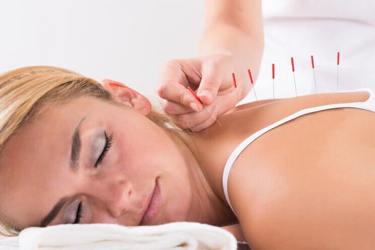 what-is-acupuncture.jpg