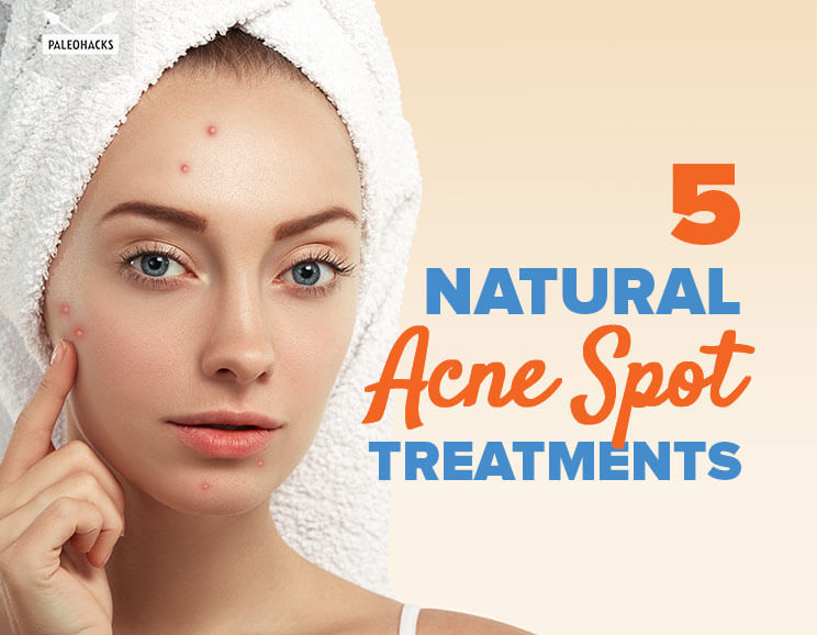 Treatment home Adult acne