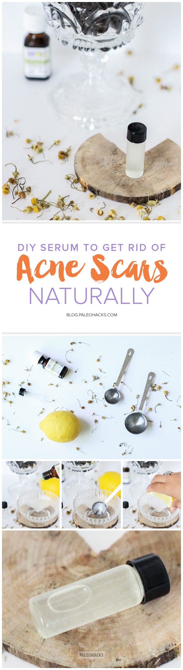 Beauty-pin-DIY-Serum-to-Get-Rid-of-Acne-Scars-Naturally.jpg