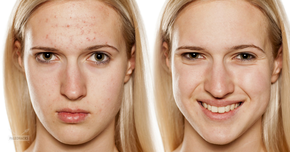 Too Much of a Good Thing: How Vitamin B12 Triggers Acne ... B12 Deficiency Skin