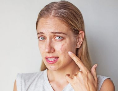 Too Much of a Good Thing:  How Vitamin B12 Triggers Acne Breakouts