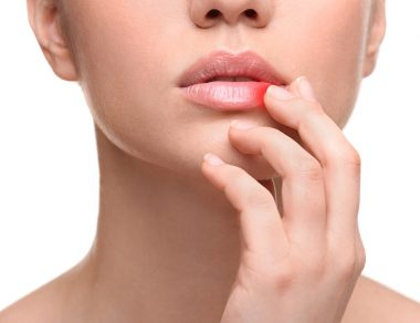 7 Natural Cold Sore Remedies