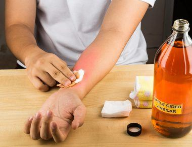 Skip The Harmful Ice Pack – 12 Home Remedies for Burns To Try Instead